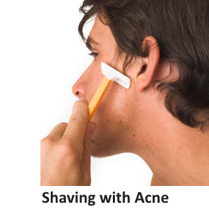shave with acne